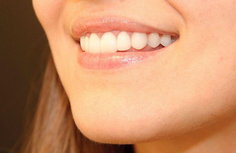 Lindo sorriso com Lente de Contato Dental