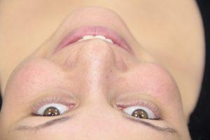 Valor da Lente de Contato Dental