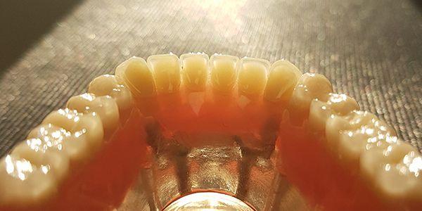 DSD Lente de Contato Dental