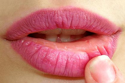 Herpes Labial