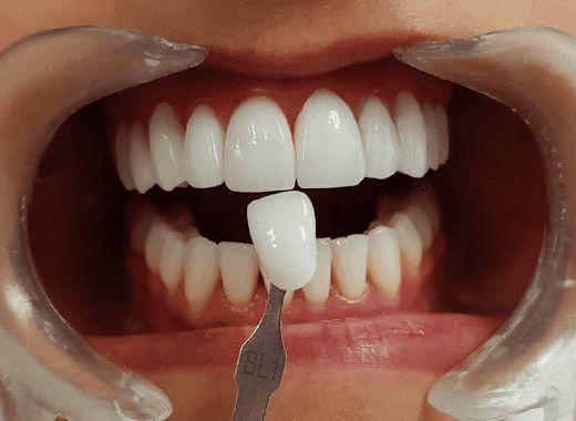 Cor dos Dentes