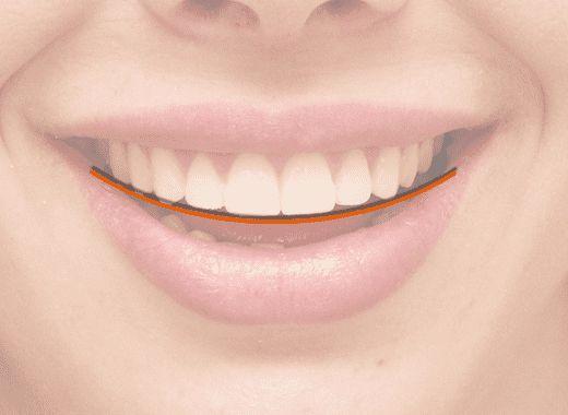Linha do Sorriso
