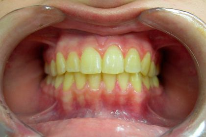 Caso Clinico Clareamento Dental Doctor Doctor Odontologia Estetica