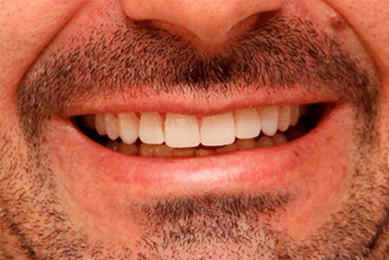 Lente de Contato Dental Depois