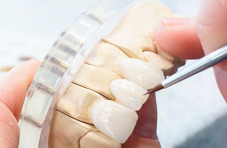 Lente de Contato Dental: Tudo o que você precisa saber sobre esse tratamento