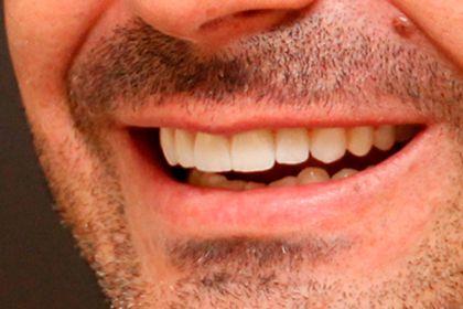 Planejamento digital do sorriso