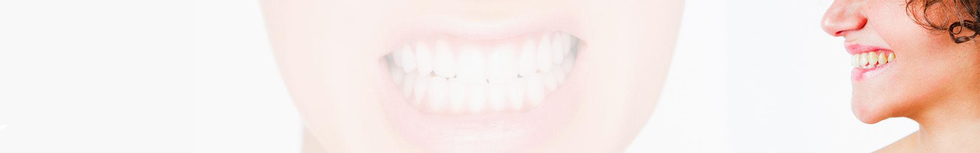 Bruxismo – O pesadelo de um sorriso saudável!