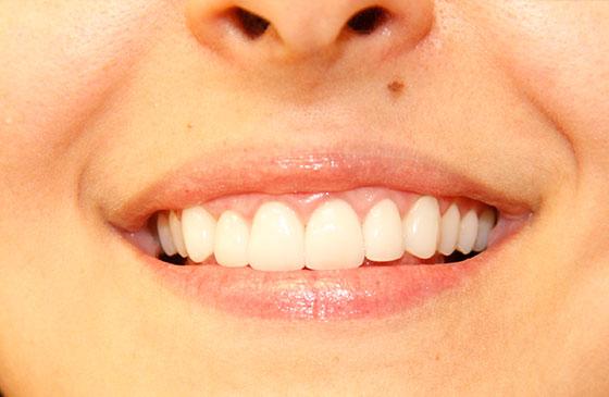 Lente de Contato Dental 2019