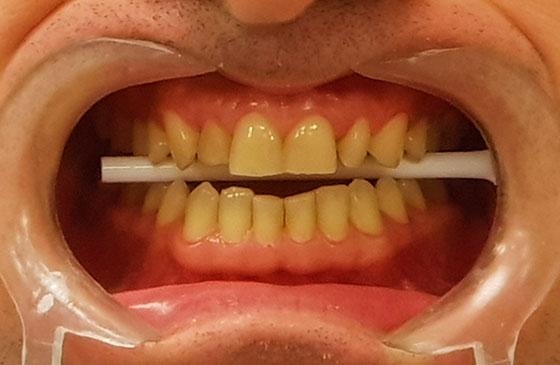 Lentes de Contato Dental antes