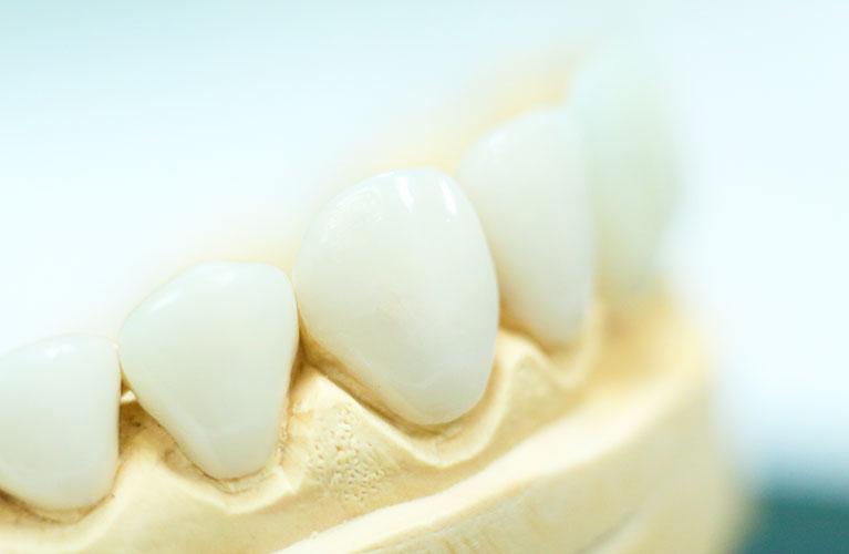 lente d contato dental de porcelana