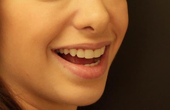 teste do sorriso
