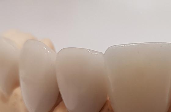 lente de contato dental de perto