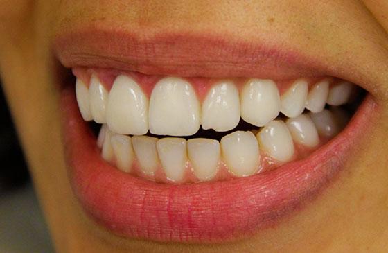 lente de contato dental fraturada