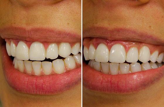 antes e depois lente de contato dental fraturada