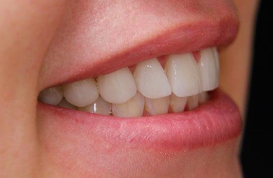 faceta e lente de contato dental