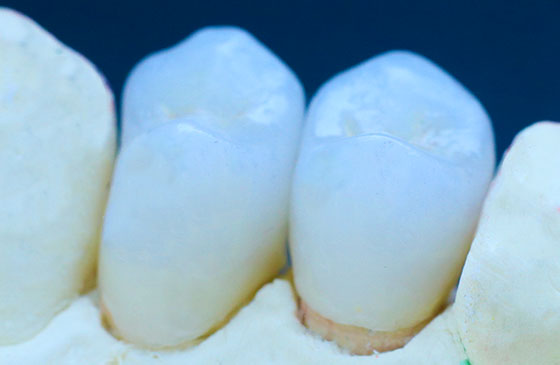 coroa de porcelana para aumentar dentes pequenos