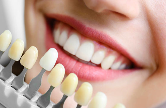 cores de facetas dentarias