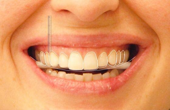 especialista em estetica dental