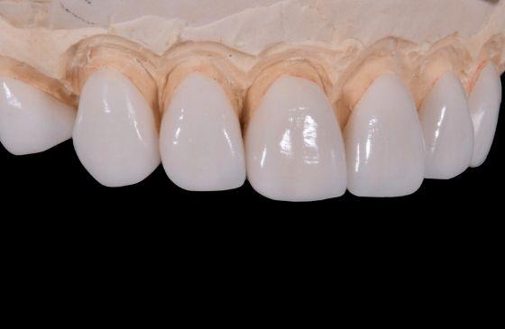 estetica dental com faceta de porcelana