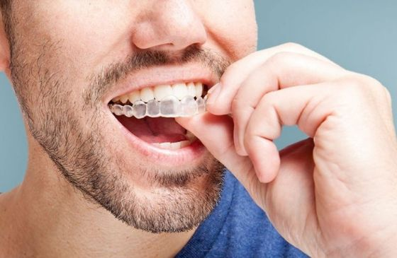 tecnicas de estetica dental invisalign