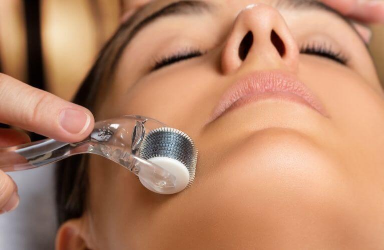 Microagulhamento | A técnica que irá revitalizar a sua pele!